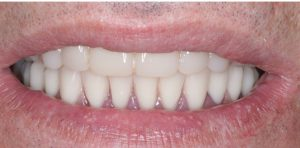 9 denture implants