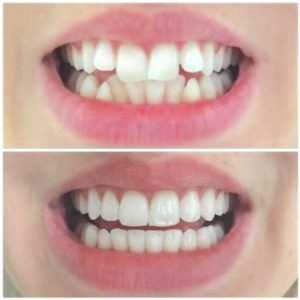 invisalign braces, clear braces