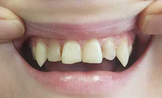 recontouring canine teeth before treatment
