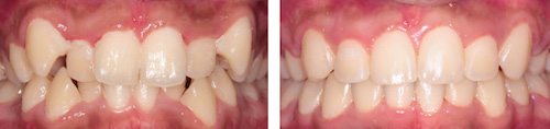 eternal-smiles-before and after-orthodontics