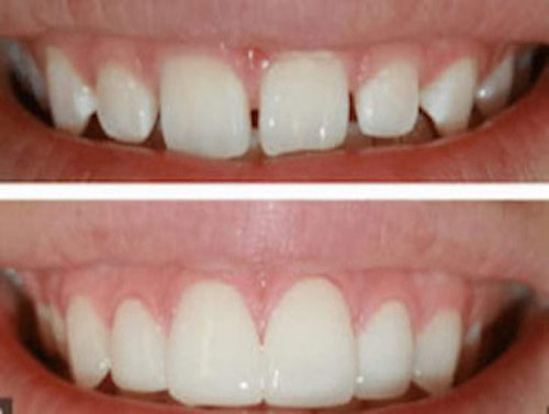 emax veneers smile makeover spaced teeth