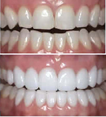 emax veneers smile makeover
